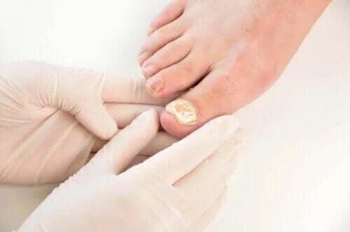 Infekcje grzybicze paznokci – 7 sposobów ich zapobiegania