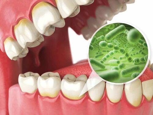 Bakterie na zębach