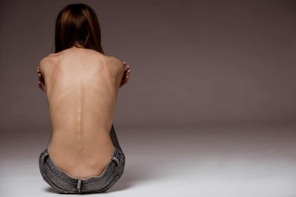 Anorektyczka