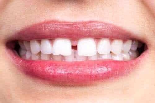 Diastema dentystyczna: na czym polega?