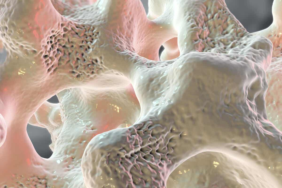 Osteoporoza kości
