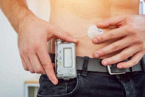 Dowiedz się, czym jest pompa insulinowa!