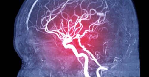Zator mózgowy — objawy, rodzaje i przyczyny powstawania