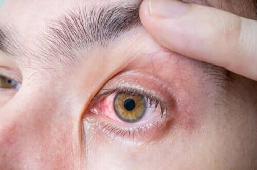 Czerniak gałki ocznej: objawy i przyczyny